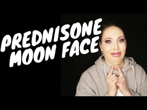 Prednisone MOON FACE :(