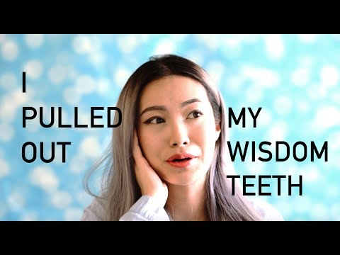 VlogYY #9 Yarina Pulled Out Wisdom Teeth ⎜Swollen Face Vlog ⎜Experience and Tips