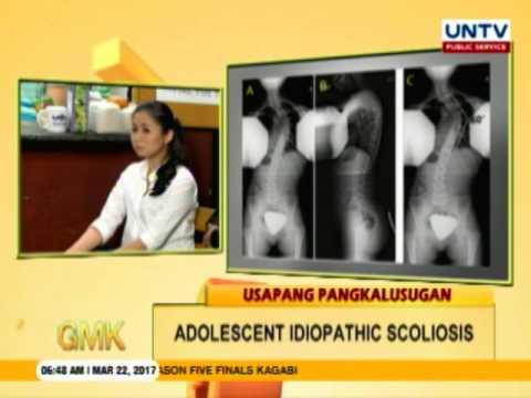 Usapang Pangkalusugan: Adolescent Idiopathic Scoliosis