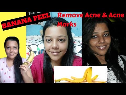 Remove Acne and Acne Marks with Banana Peel/ Banana Peel Face / Banana Peel Uses