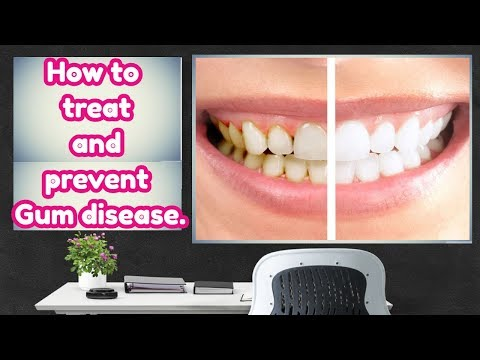 Gum disease, Home remedies for treat and prevent Gum disease.