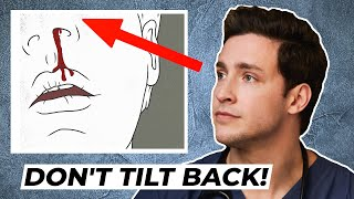 Doctor's Trick to Stop A Bloody Nose | Responding To Comments