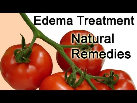 Edema Treatment tips - Edema Treatment Natural Remedies