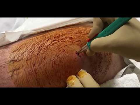 Infection in Thigh - This One Goes Deep!  Medical Monday