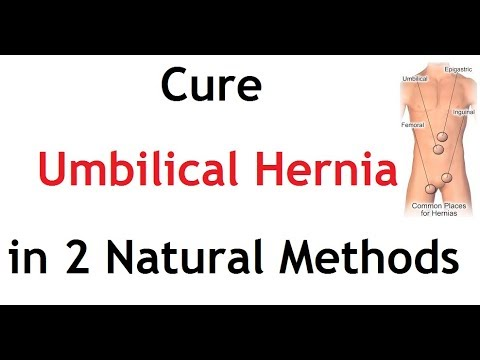 Cure Umbilical Hernia in 2 Natural Methods | Acupressure | Yoga