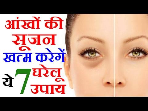 आंखों की सूजन खत्म करने के 7 घरेलू नुस्खे Home Remedies For Puffy Eyes - Eye Bags Home Remedies