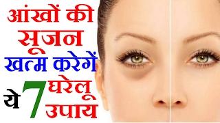 आँखों की सूजन का इलाज Eye Swelling Treatment in Hindi