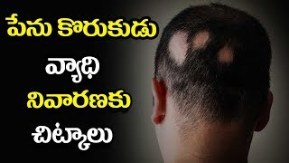 Natural Home Remedies for Alopecia Areata - Mana Arogyam Telugu Health Tips