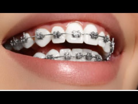 Closing a large gap with braces  (before and after pictures)