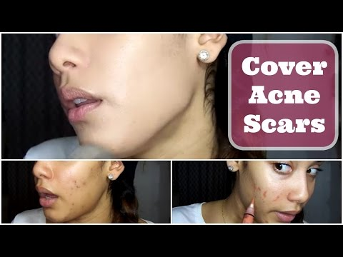 How to Cover Scars with Makeup + CHEAP
