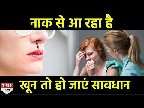 हल्के में ना लें Nose Bleeding, हो सकती है बड़ी समस्या ! Must Watch!!!