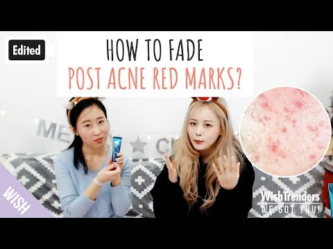[Edited] How to Fade Post Acne Red Marks? Post Acne Skin Care Tips | My Acne Story | WWGY
