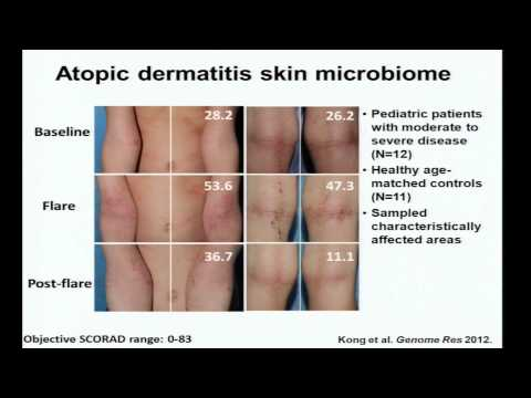 Eczema, Immunity and the Skin Microbiome - Heidi Kong