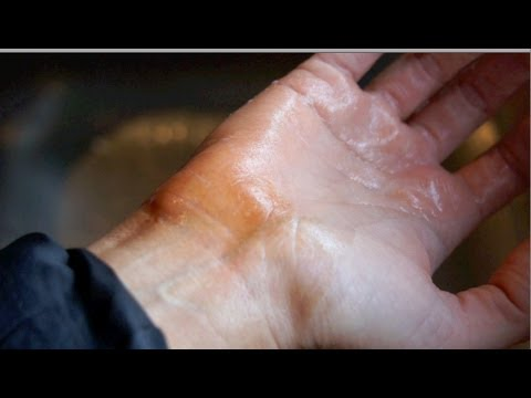 How to remove bad fake tan around wrists, feet, knuckles