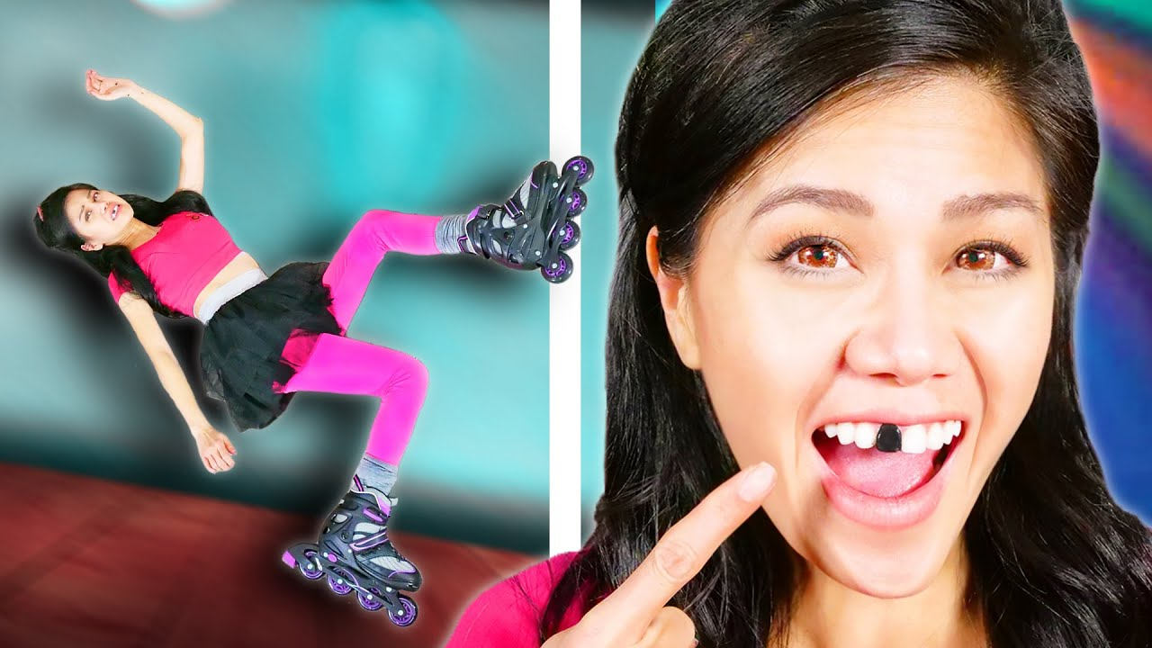 I BROKE A TOOTH ROLLER SKATING IN MY HOUSE!