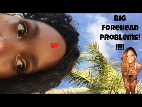 Big Forehead Problems!!!/ Rant// Whitney Riley