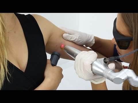 Laser Tattoo Removal in London -  From £70 per treatment