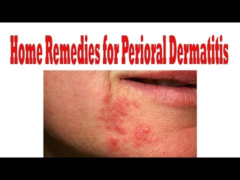 How to Cure Perioral Dermatitis || how to get rid of perioral dermatitis