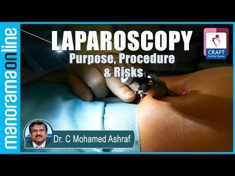 Laparoscopy : Purpose, Procedure & Risks   Dr. C Mohamed Ashraf   CRAFT Fertility Centres