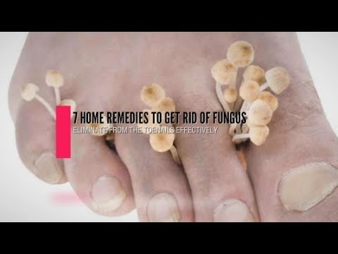 7 Home Remedies To Get Rid Of Fungus From Toenails Effectively