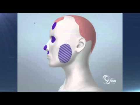 Forensic Animation - Neulander Trial