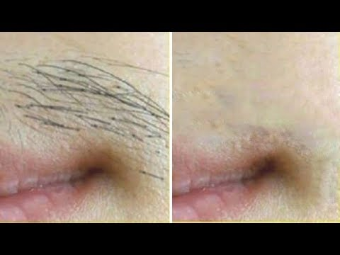 Remove Facial Hair PERMANENTLY At Home | Get Rid Of Facial Hair Instantly With Ubtan Face Pack