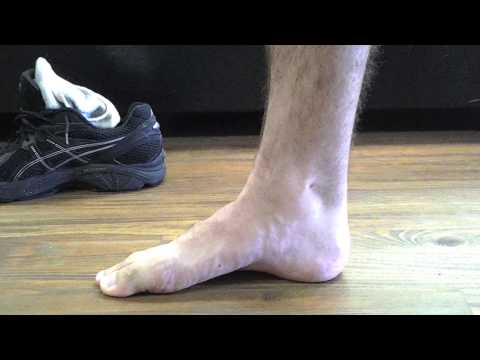 Active Arch (Short Foot Exercise)