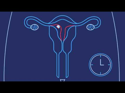 How Does Pregnancy Happen | Planned Parenthood Video