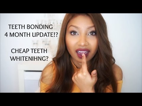 TEETH BONDING FIXING TEETH GAP WITHOUT BRACES 4 MONTH UPDATE
