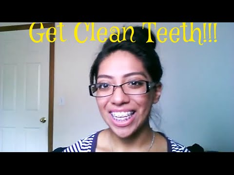 How to: properly clean teeth with braces!
