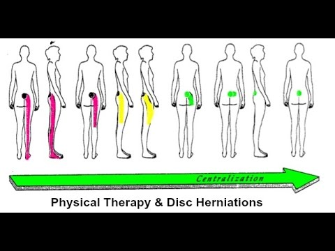 Herniated Disc/Sciatica Recovery: Part 3 (Physical Therapy)