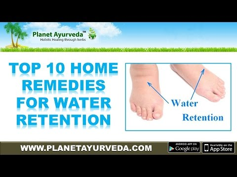 Top 10 Home Remedies for Edema (Water Retention) | Natural Treatment