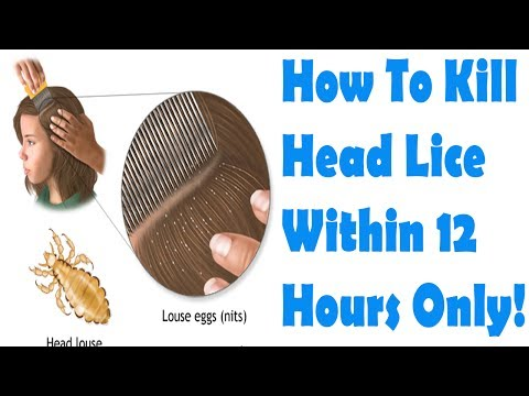 How to Get Rid of Lice Overnight | How To Kill Head Lice Within 12 Hours Only!