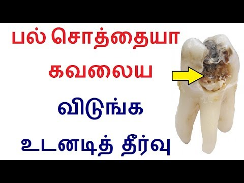Best Home remedies for Teeth cavities and plaques in Tamil | Teeth problem tips in tamil