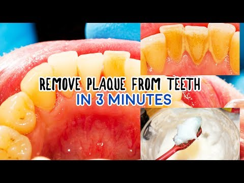 How to Remove Plaque and Tartar from Teeth in 3 Minutes