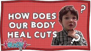 Download How Does Our Body Heal Cuts? | Operation Ouch | Nugget Video