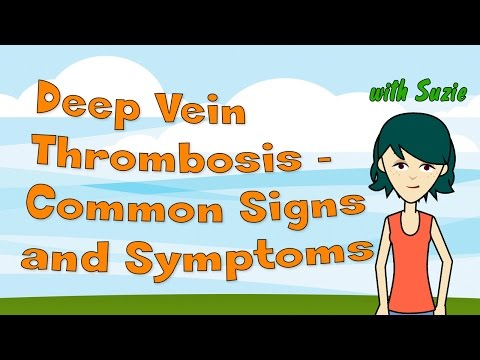 Deep Vein Thrombosis - Common Signs and Symptoms