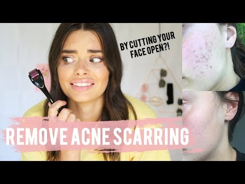 How To Completely Get Rid Of Acne Scars - Microneedling | Rylie Lane