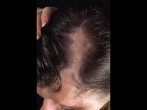 5 Health and Medical Reasons that Cause Hair Loss -hair loss tips