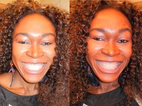 {#148}: TEETH WHITENING. teeth whitening gel trays / teeth whitening trays.