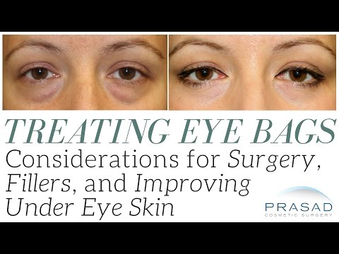 Treating Eye Bags: Considerations for Surgery, Cosmetic Fillers, and Improving Dark Circles