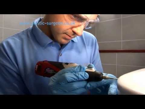 How to repair a damaged sink