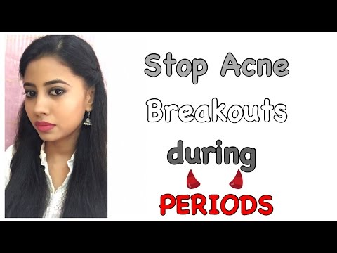 HOW TO STOP ACNE BREAKOUTS DURING PERIODS|Get clear Skin|
