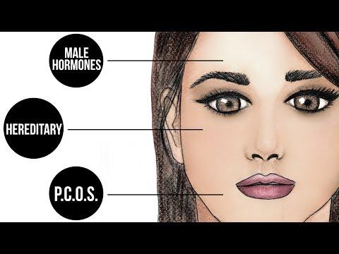 Estrogen facial hair