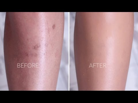 Cover Scarring & Pigmentation with Makeup