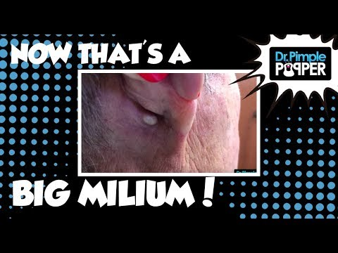 Now, THAT's a Milium! (revisited)
