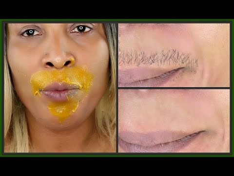 IN 5 MINUTES REMOVE UNWANTED FACIAL HAIR, UPPER + LOWER LIPS FOR GOOD | Khichi Beauty