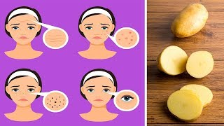 6 Clever Ways To Use Potatoes As A Beauty Product