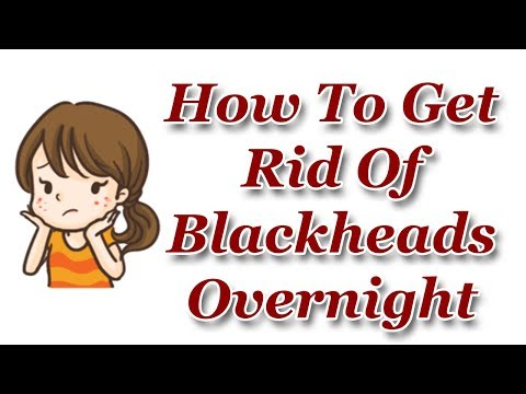 How to Get Rid of Blackheads Overnight - Get Rid Of Blackheads Fast Naturally
