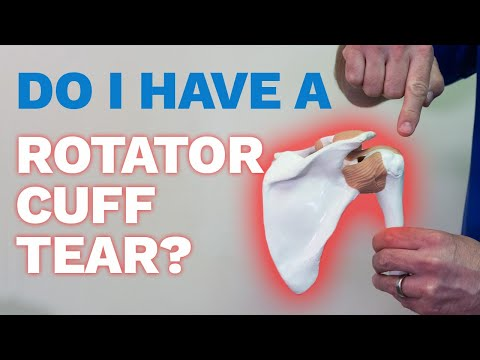 Do I have rotator cuff tear and is surgery necessary?